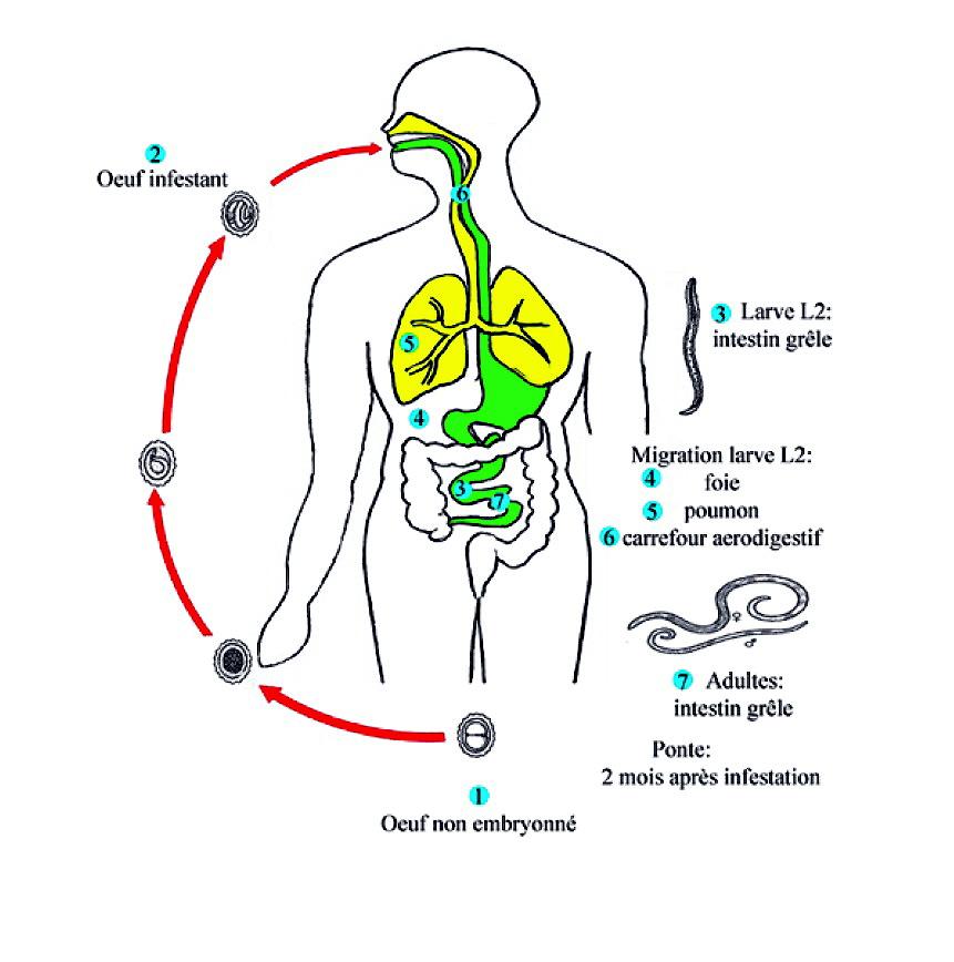 ascaridiase2